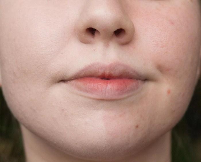 Comparison of bare face vs. The Ordinary Colour Serum Foundation