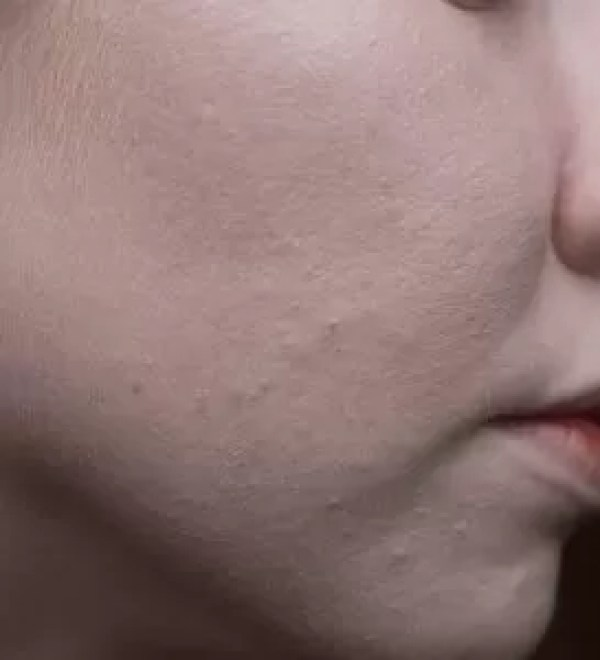 Skin after two layers of The Ordinary Colour Serum Foundation