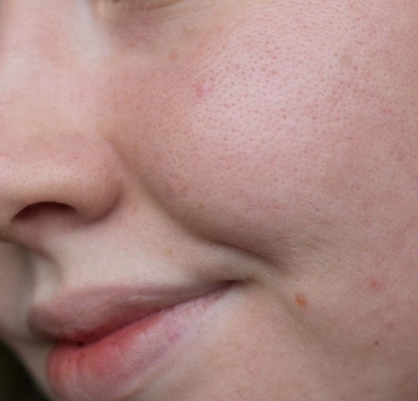 Pores and skin texture with no foundation
