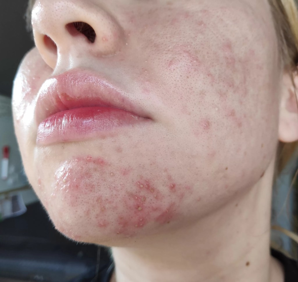 From Fungal Acne/Folliculitis to Clear Skin (with Pictures