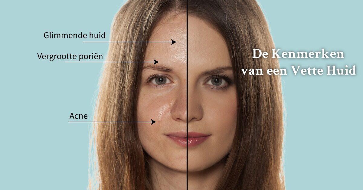 vette huid Aalsmeer