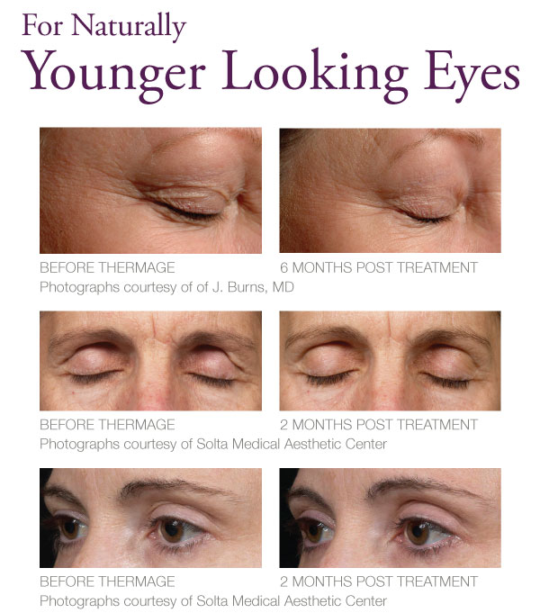 Thermage for eyes - The Skiny