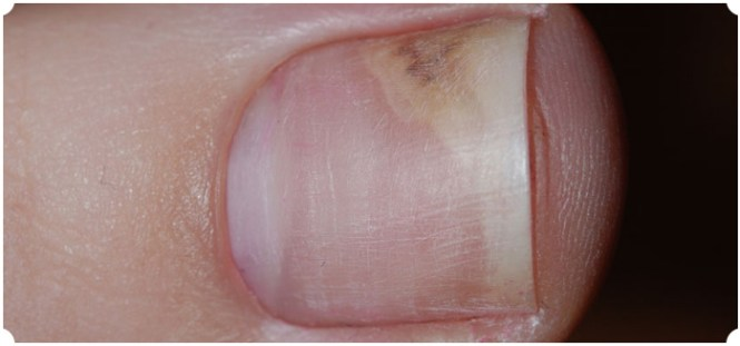 A Good Exle Of This Is Onychomycosis And Psoriasis The Nail