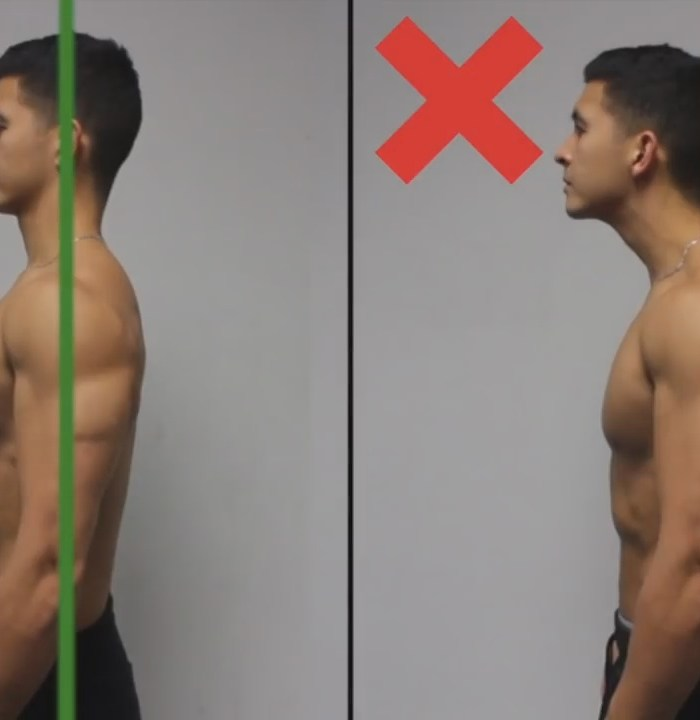 How Long Does It Take To Correct Forward Head Posture
