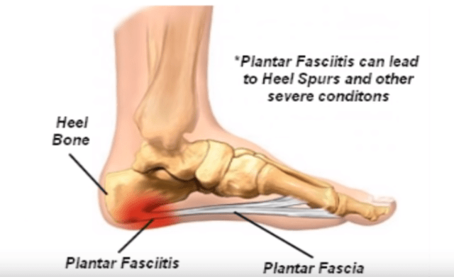 Best Boots For Plantar Fasciitis