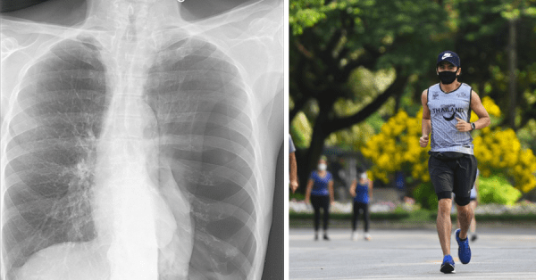 Jogger's Lung Collapses After Running With Face Mask, Doctor Advises Not To Cover Face While Exercising