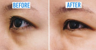 dark eye circle treatment new york skin solution before after