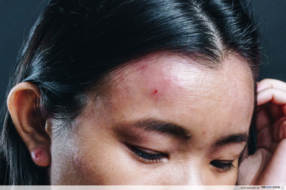 Suu Balm Gladys Eczema face forehead