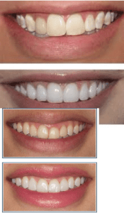 Porcelain Veneers before & after