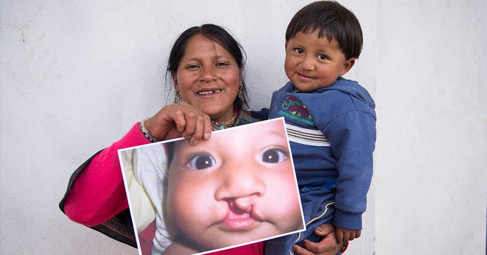 Every Child Deserves to Smile | Snow Goose B&B, Adirondacks, NY