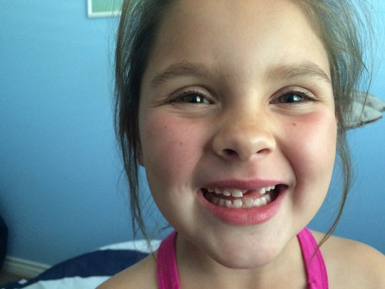 bye front tooth