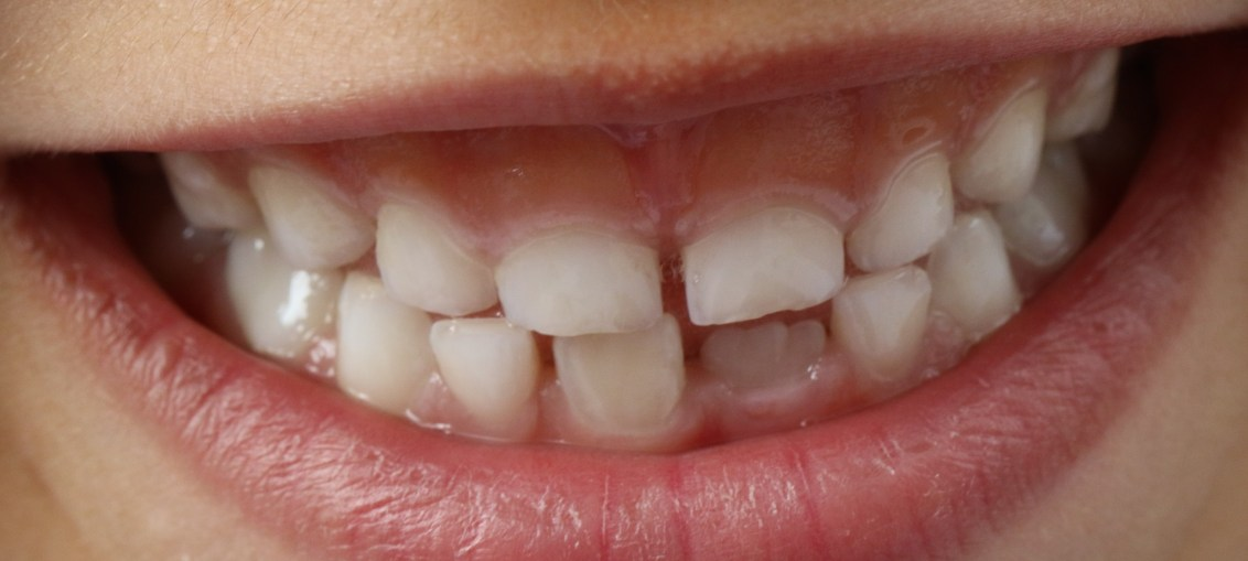 This is a picture of a mouth and teeth for the Visiting a dentist in Ghent article