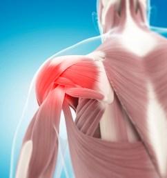 rotator cuff tear anatomy shoulder [ 1732 x 1732 Pixel ]