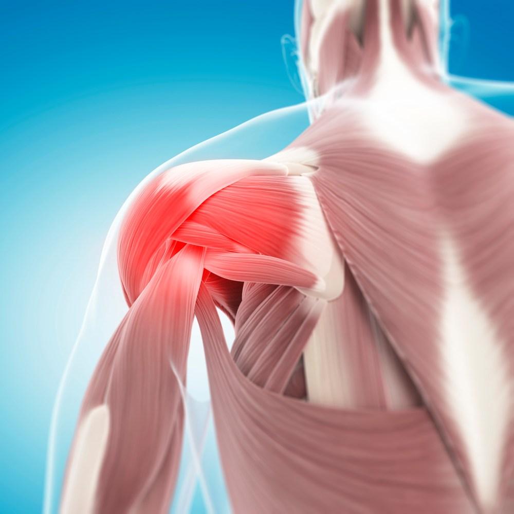 medium resolution of rotator cuff tear anatomy shoulder