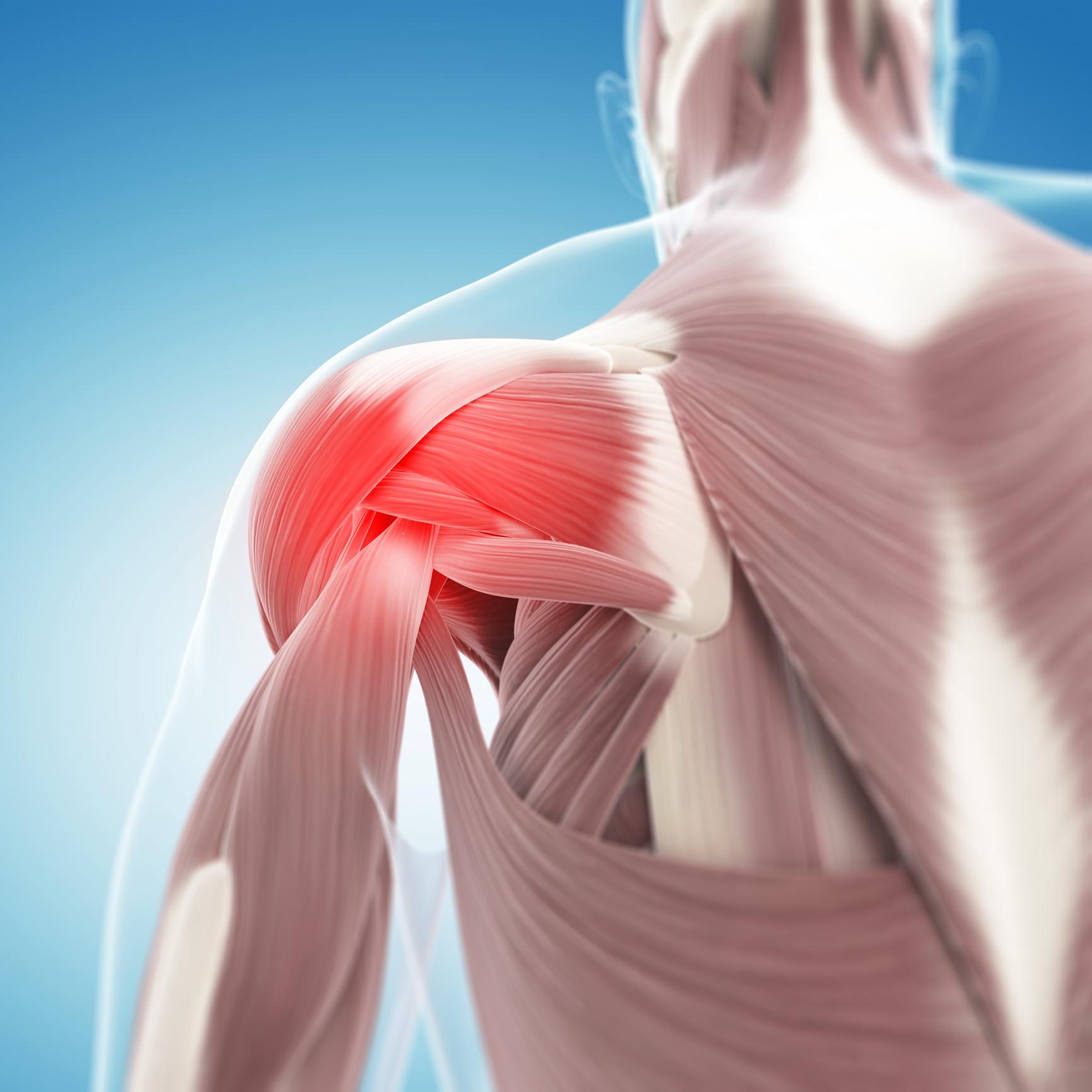 hight resolution of rotator cuff tear anatomy shoulder