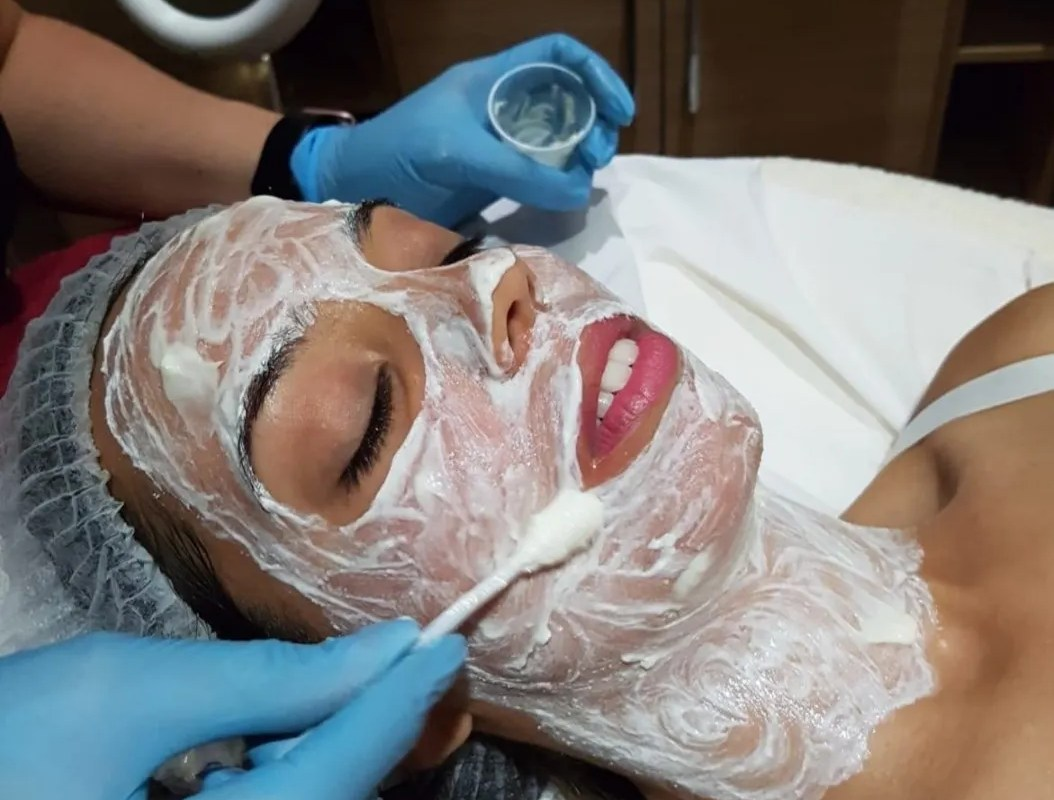My first Chemical Peel: What to Expect