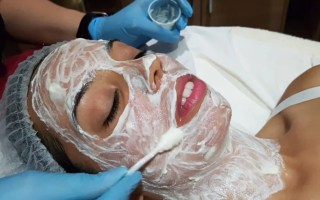 first chemical peel