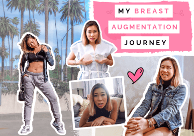 Kasey Ma of The StyleWright Breast Augmentation Journey