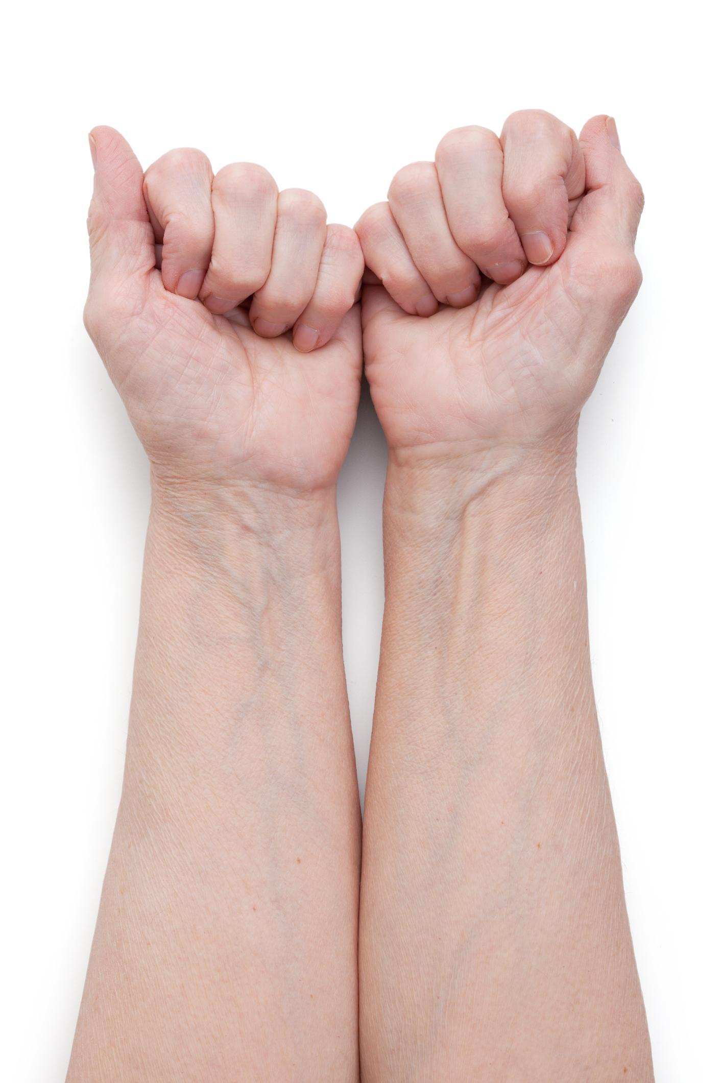 Vein Color : color, Colours, REALLY, Wrists