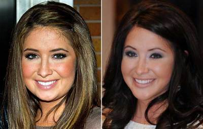 In Defense of Bristol Palin's New Chin