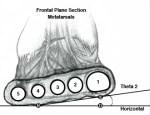 theta custom orthotics