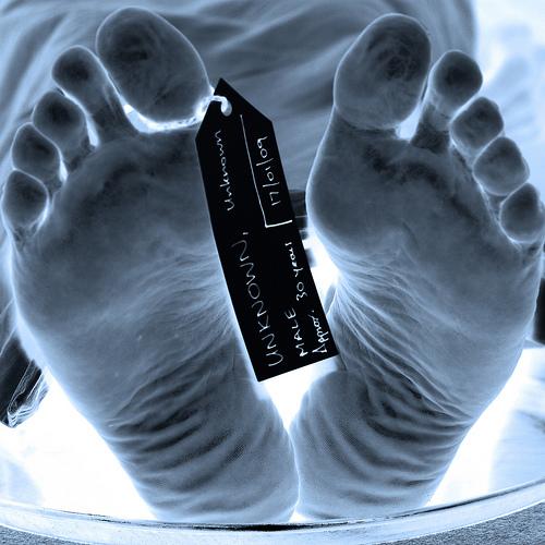 cadaver feet toes death