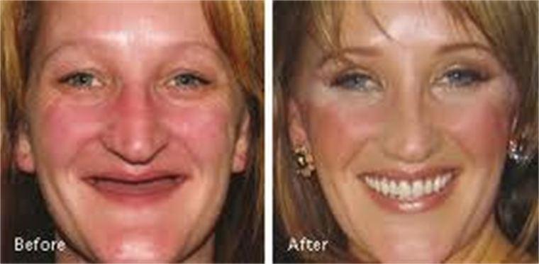 Esthetic Dentures