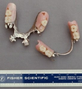 Image of the Nation River Lady's dentures