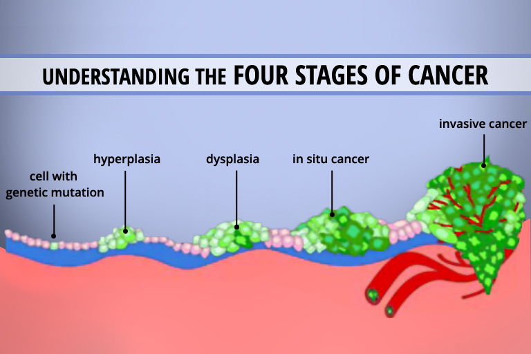 of cayenne pepper for cancer digestion heart disease more