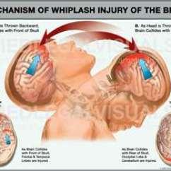 Posture Chair Benefits Office Philippines Whiplash Injuries