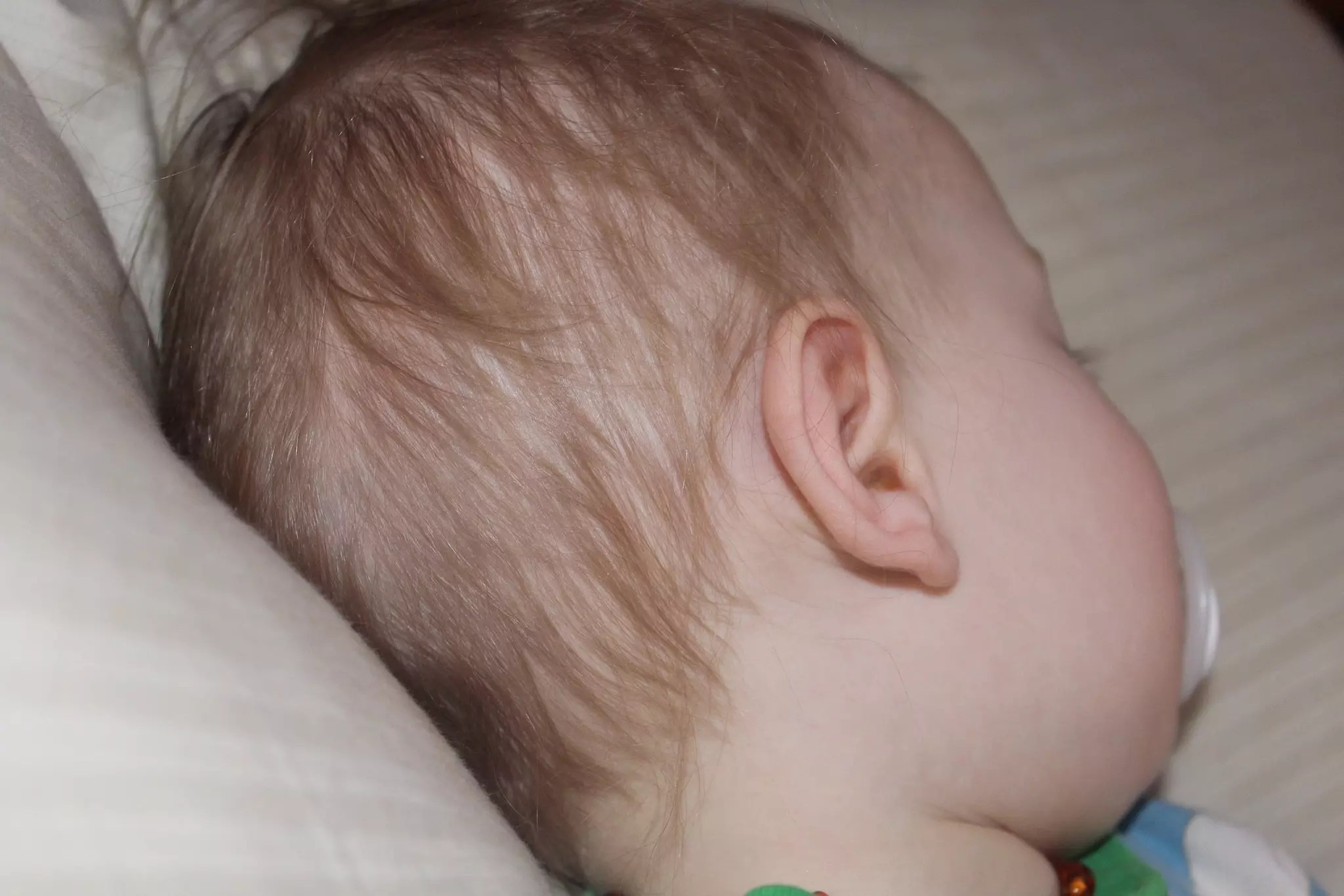 Natural Remedies For Ear Infection In Child