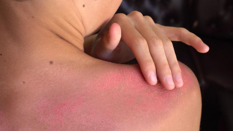 painful sunburn