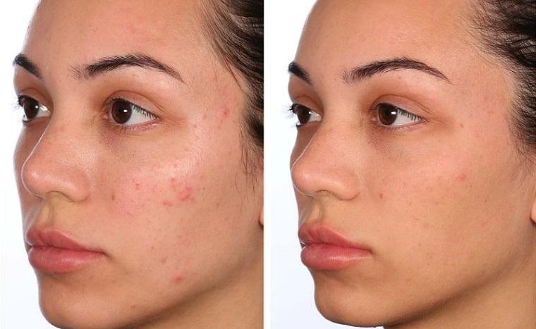 skin care facial acids eliminate acne