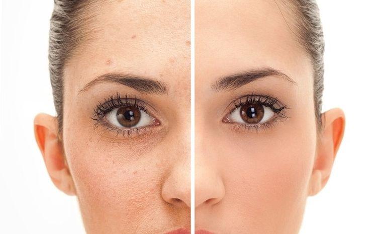 skin care facial acids repair tissues
