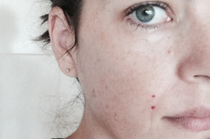 VM vs Microdermabrasion and Chemical Peel – my experience (and 40% off for you!)