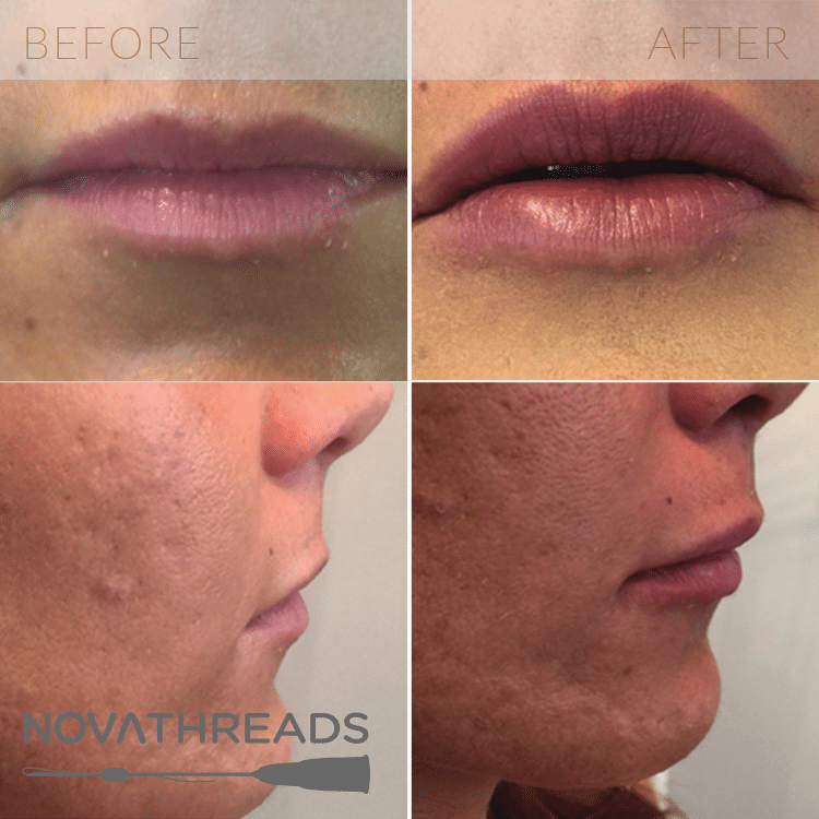 Injectables-NovaThreads