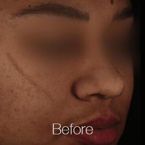 Pigment-Correction-Before3