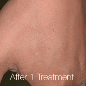 After 1 Treatment