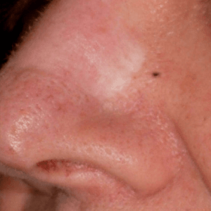 Scar-Removal-Before2