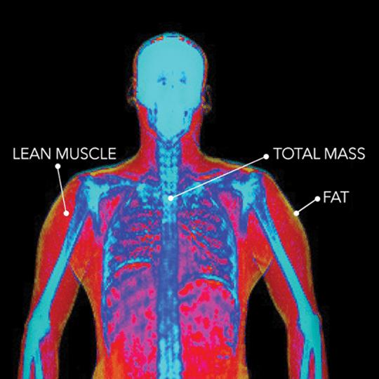 BodyCompScan