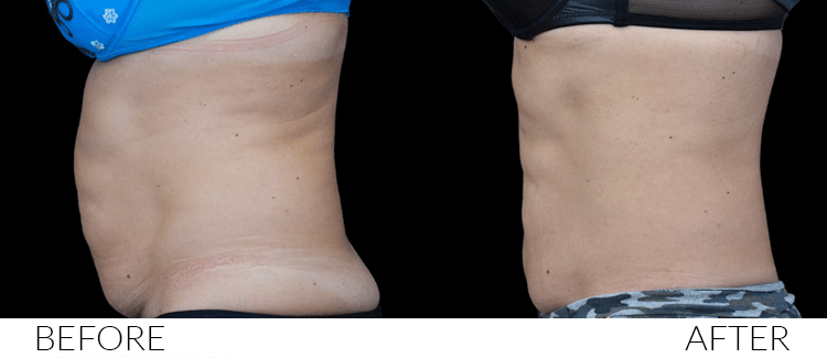 BEFORE-AND-AFTERS-Emsculpt4