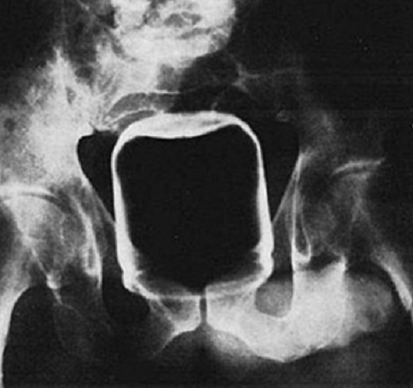 Peanut Butter Jar Found With X-Ray