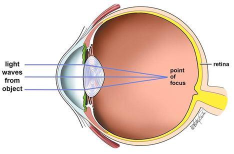 Human Eye Diagram Myopia Myopia Lens Concave Or Convex Wiring
