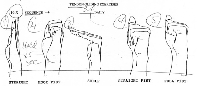 TENDON GLIDING EXERCISES FOR CARPAL TUNNEL PDF