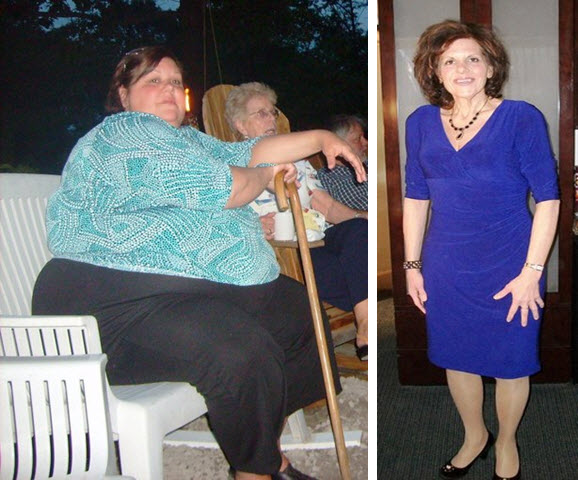 Theresa lost 276 pounds! See my before and after weight loss pictures, and read amazing weight loss success stories from real women and their best weight loss diet plans and programs. Motivation to lose weight with walking and inspiration from before and after weightloss pics and photos.