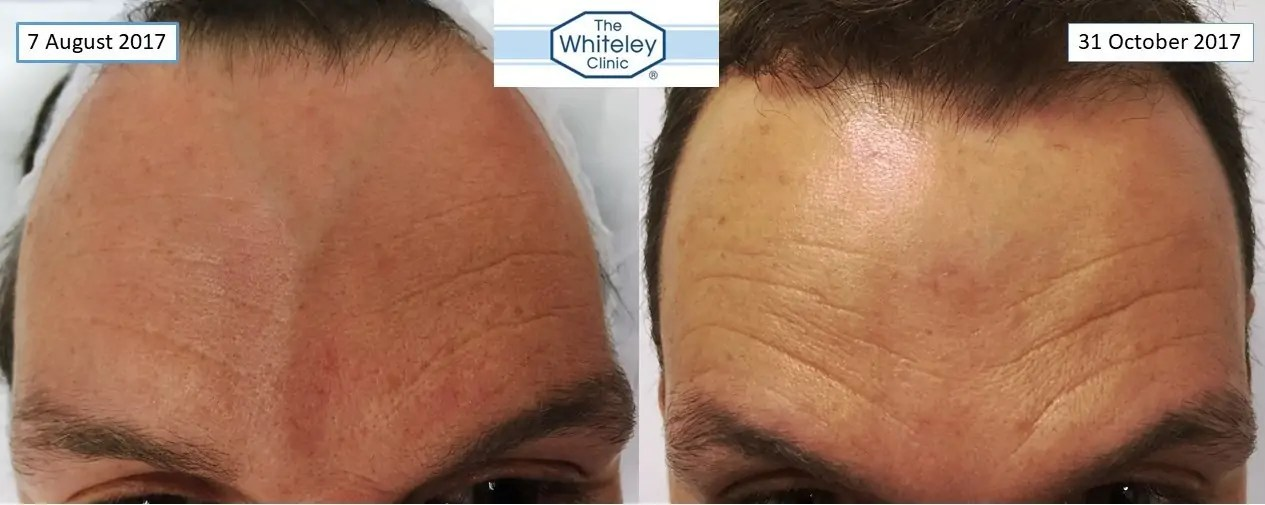 forehead veins successful removal