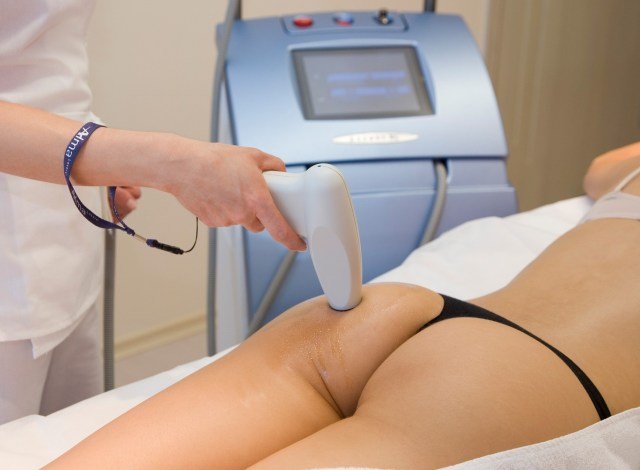 Cellulite Treatment women