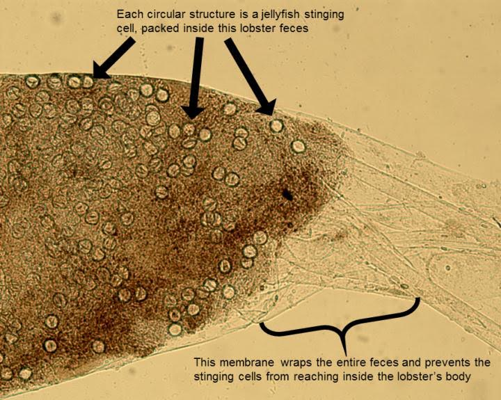 Empty circles are the nematocysts, or stinging cells, of jellyfish that have been packed together and wrapped tightly into packages of feces in the beginning of the lobster's digestive tract. The membrane, which can be seen extending off to the right side of the image, is a mechanical adaptation to prevent lobsters from being killed by their venomous food. Credit: Kaori Wakabayashi, Hiroshima University