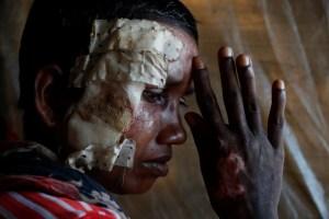 Rohingya refugee Momtaz Begum, 30, poses for a photograph at Balukhali refugee camp in Bangladesh October 19, 2017. Credit: Reuters/Jorge Silva