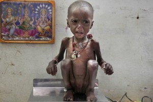 malnutrition reuters 1